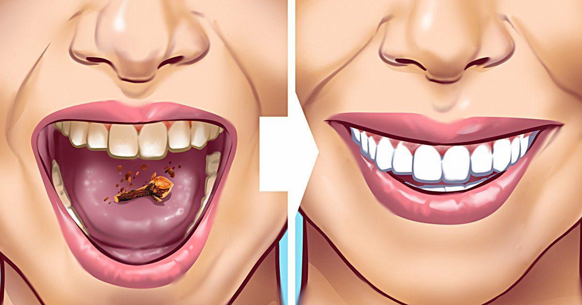 sarro_en_los_dientes 1200x630