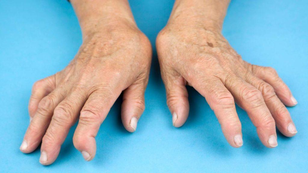 La osteoartritis