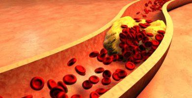 arteria-obstruida