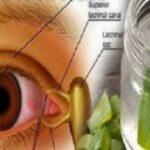 aloe vera para mejorar la vista