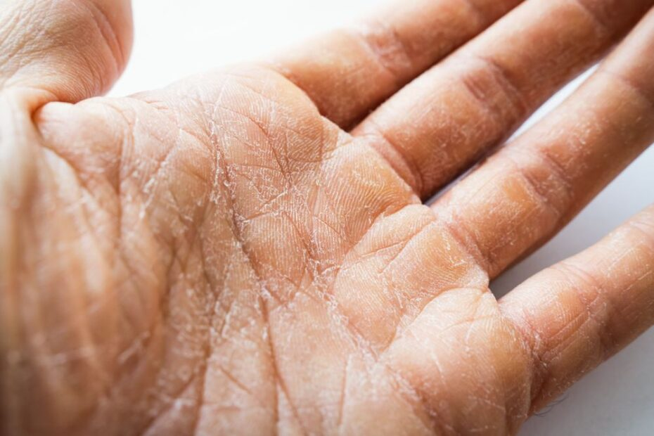 manos_secas